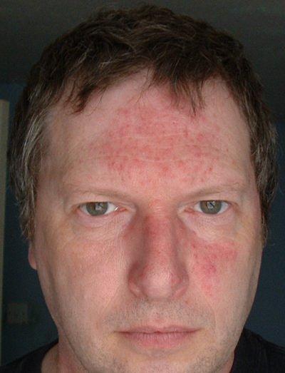Что делать если на лице белые пятна как лечить