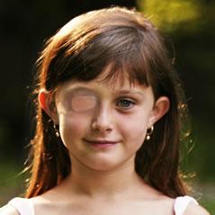 Коррекция зрения в казани на бутлерова