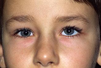 после окклюзии стали косить оба глаза для тебя