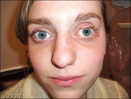 атрофия зрительного нерва фото