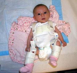 незрелость тазобедренных суставов у новорожденного что такое