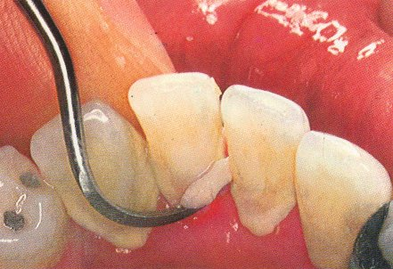 Удаление зубного камня беременной 91